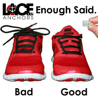 Lace Anchors