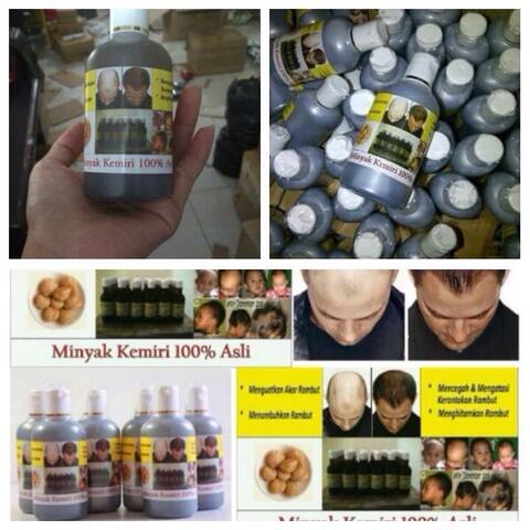 terjual minyak kemiri penumbuh rambut kumis jenggot jambang brewok Gambar Minyak Kemiri Penumbuh Rambut