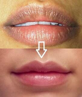 Cara Cara Memerahkan Bibir Secara Alami Dan Cepat Kaskus