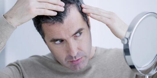 [REBORN] [HELP] Rambut Gua Rontok, hampir Botak