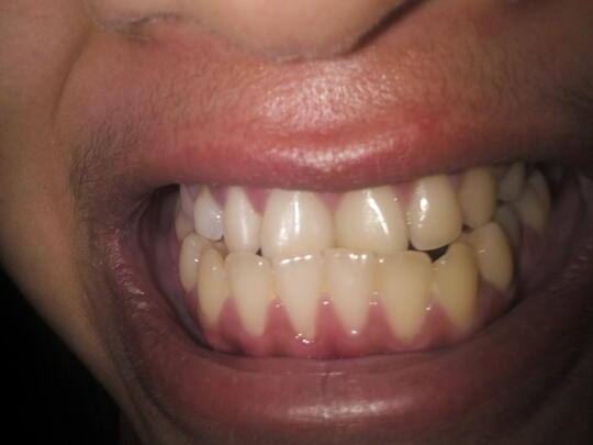 Sedikit Gambaran sebelum Memutuskan Memakai Kawat Gigi (pesawat orthodonti) 7c113cf159