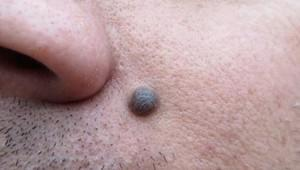 """Kenapa bintik hitam di tubuh disebut """"Tahi Lalat"""""""