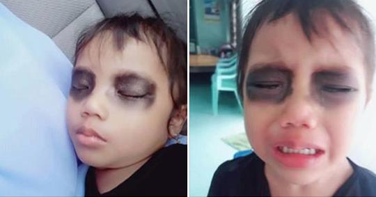 """Viral """"Mata Panda"""" Hentikan Candu Smartphone, Ternyata Tak Baik Untuk Anakmu!"""