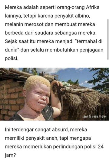 Misteri Albinisme Yang Diburu Dan Dihargai Paling Mahal Darahnya, Benarkah Demikian?