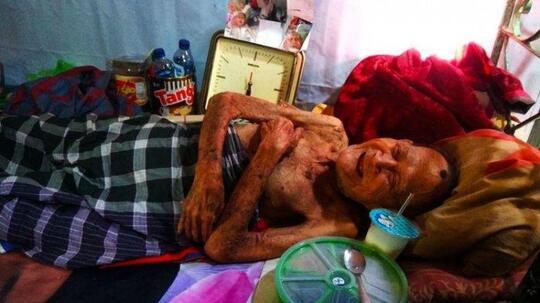 Tega! Kakek 98 Tahun Ditelantarkan 4 Anaknya, Lumpuh dan Tak Mandi 9 Bulan.