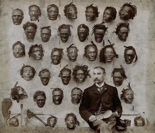 Kolektor-Kolektor Paling Aneh Di Dunia Dari Koleksi Foto Penis Hingga Kepala Manusia